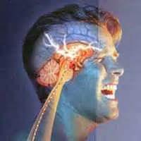 تفاوت آناتومیک عروق مغزی مبتلایان به میگرن