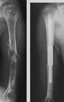 مفاهیم: سرطان استخوان چیست؟