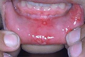 درمان جوش داخل دهان