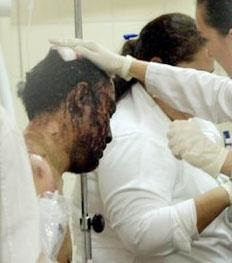 بولیوی؛ ۳۰ کشته در نزاع زندان