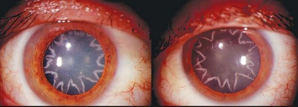 cataract۲