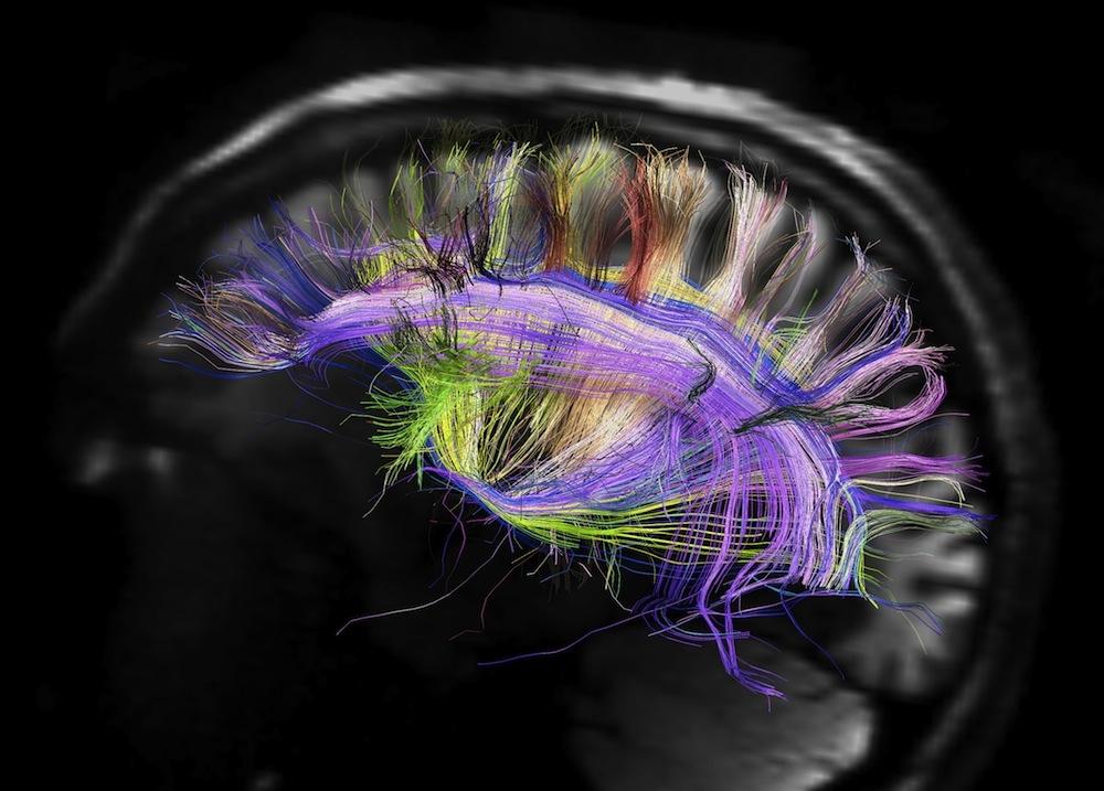 اولتراسوند ممکن است کارکرد مغز را تقویت کند