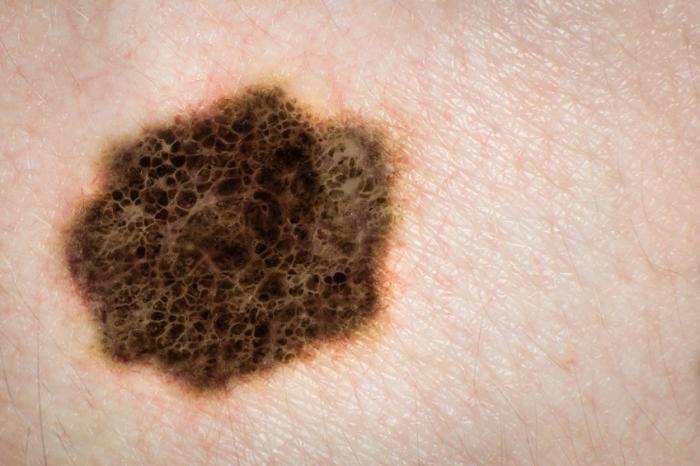 اپلیکشنهای تلفنهای هوشمند برای تشخیص زودرس سرطان پوست