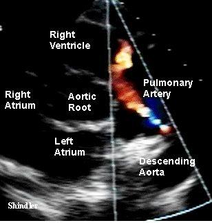 مفاهیم: اکوکاردیوگرافی (اکوی قلب) چیست؟