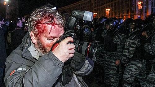 آسیب خبرنگاران