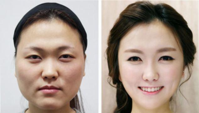 هویت از دسترفته؛ هدیه جدید جراحی زیبایی در کرهجنوبی