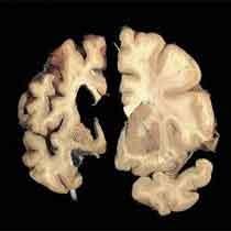 مفاهیم: بیماری هانتینگتون چیست؟