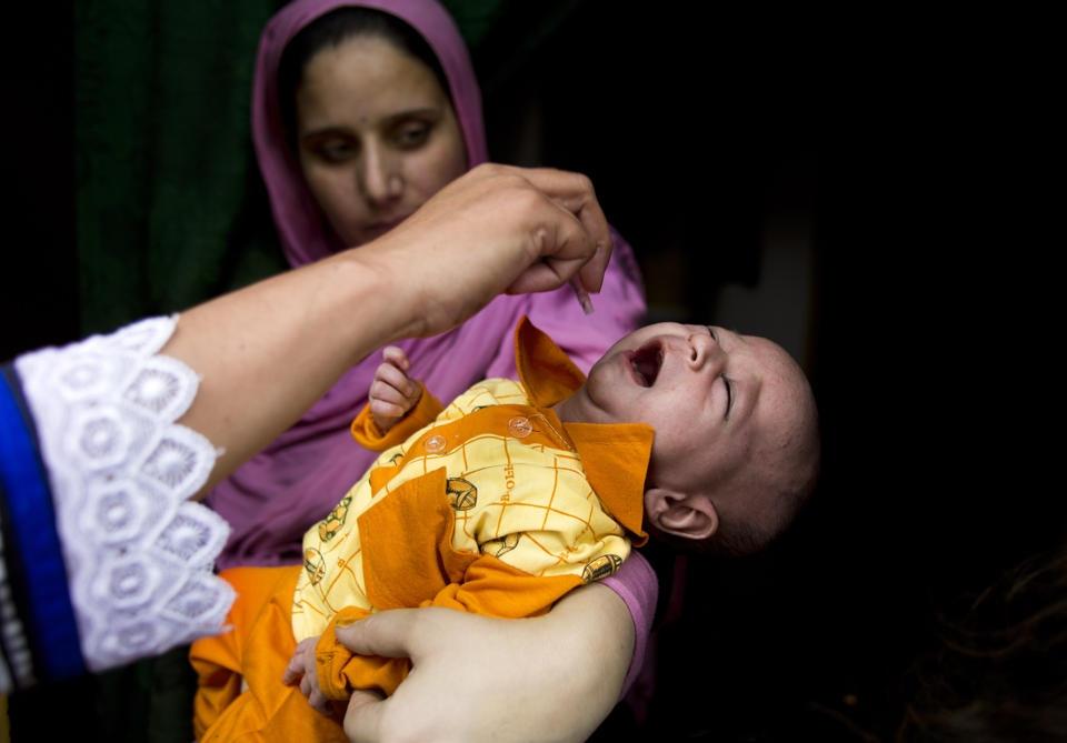 polio۳
