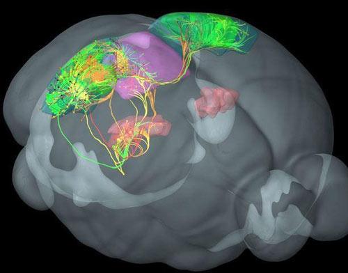 تهیه نقشه سهبعدی از سیمکشی مغز