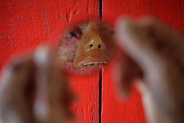 عکس روز: بیماری نادر پوستی در دهکده برزیلی