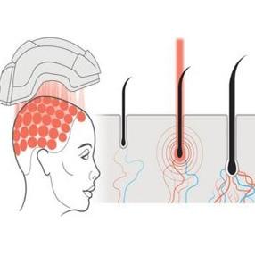 درمان طاسی سر با کلاه لیزری