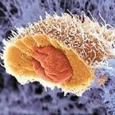 مردان هم به سرطان پستان مبتلا میشوند