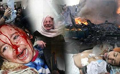 افزایش شهدای غزه به ۶۶۰شهید، مساجدو بیمارستانها درخاک و خون