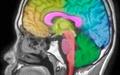 جمعیت بالای سیناپسها عامل ابتلا به اوتیسم