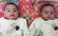 رکورد ۵ قلوزایی در دست اصفهانیها