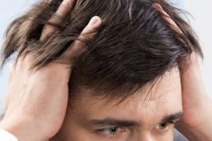 نسخه خوراکی برای جلوگیری از ریزش مو