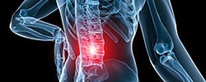 راههای مقابله با کمر درد در محل کار