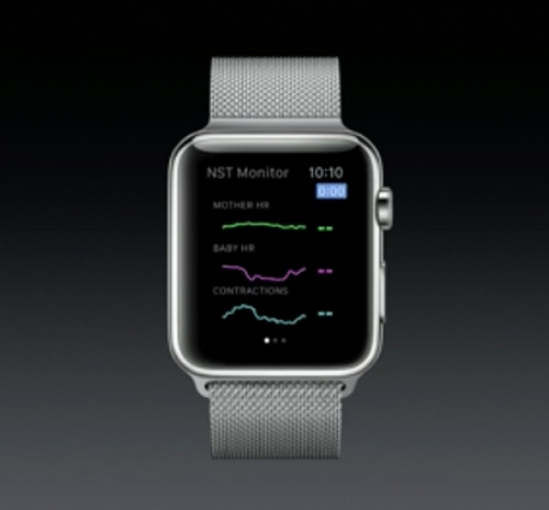 اندازهگیری سرعت ضربان قلب جنین با ساعت مچی اپل