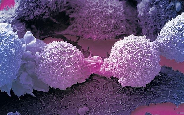 تغییر سبک زندگی میتواند از ۹۰ درصد سرطانها پیشگیری کند