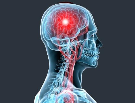 مفاهیم: سکته مغزی چیست؟