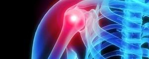 آشنایی با تمرینهای ساده برای تسکین شانههای دردناک
