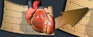 تاثیر سودمند ورزش با شدت متوسط بر سلامت قلب زنان