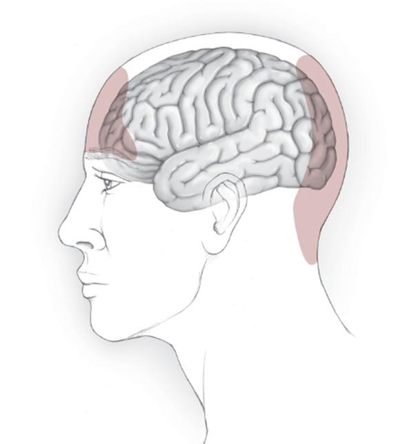 tension Headache۲
