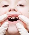 ۵دندان پوسیده در دهان هر ایرانی ۶ساله