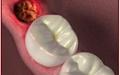 مفاهیم: حفره خشک در دندانپزشکی چیست؟