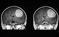 ساخت بمب هوشمند میتوکندری برای درمان تومور مغزی