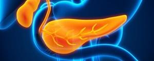 کشف درمانی نوین برای سرطان پانکراس