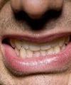 بیمه دندانپزشکی برای افراد زیر ۱۴سال