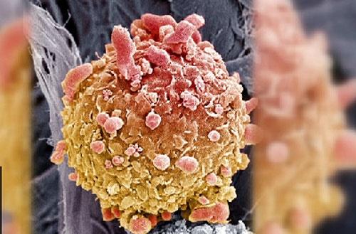 شیوه تازه درمان سرطان پوست