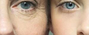 ورود جدیدترین فناوری جوانسازی پوست به بازار