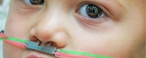 حس بویایی و درمان اوتیسم