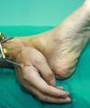 پزشکان دست بریده مردی را به پایش متصل کردند