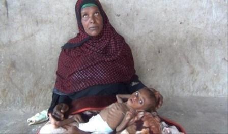سازمان ملل: ۱۳ استان یمن در معرض گرسنگی قرار دارد