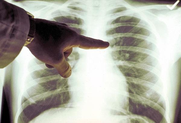 پنجه سرطان ریه بر گلوی دودیها