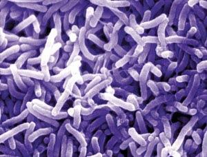امسال گزارشی از وبا در کشور نداشتهایم