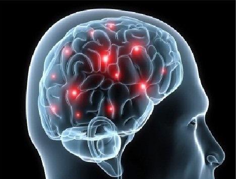 زمان طلایی درمان سکته مغزی چه موقع است؟