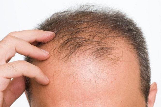 آشنایی با عادات غلط که به سلامت مو  آسیب میزند