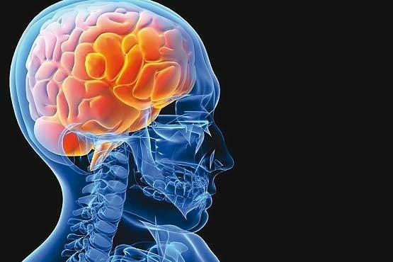 آشنایی با راهکارهای ساده برای پیشگیری از سکته مغزی