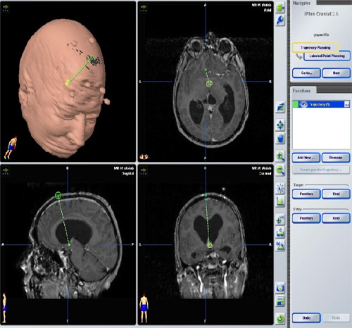 brain۳