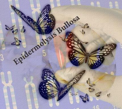 مفاهیم: بیماری ای بی (EB) (کودکان پروانهای) چیست؟