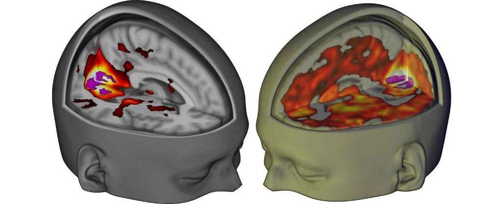 تصویربرداری از مغز تحت تاثیر روانگردان برای اولینبار در جهان