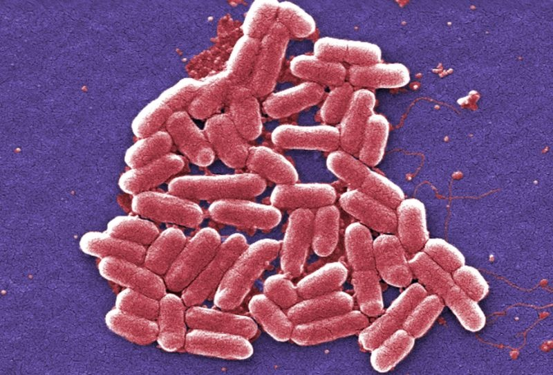 شناسایی نخستین مورد میکروب مقاوم به همه آنتیبیوتیکها در آمریکا
