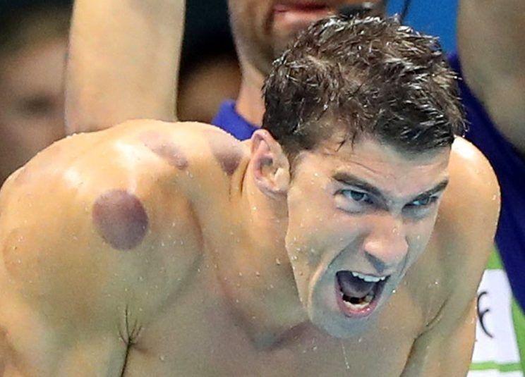 آیا بادکش کردن به ورزشکاران المپیکی کمک میکند؟