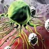 چهار سرطان شایع زنان را بشناسید