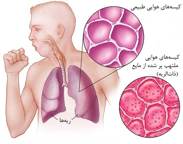 pneumonia۲