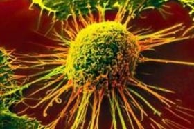 ماموگرافی برای چه کسانی ضرورت دارد؟